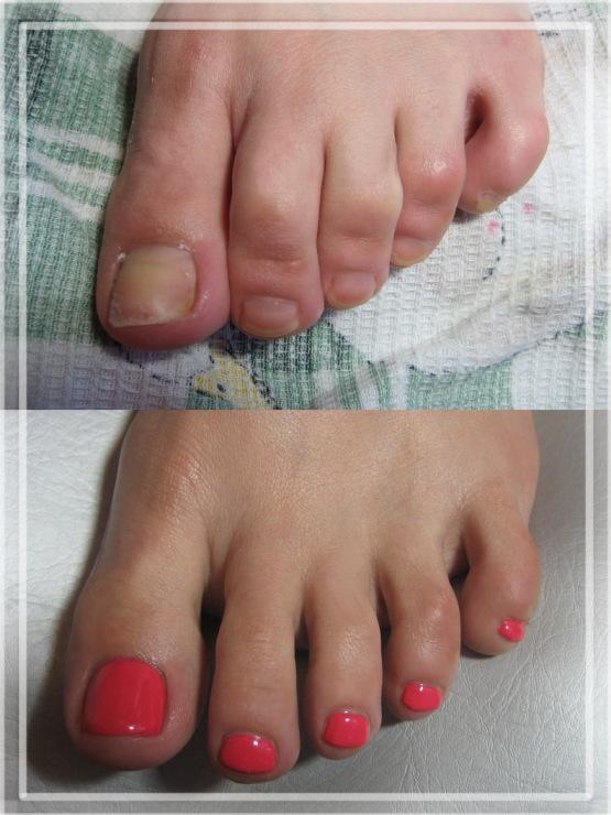 Педикюр с проблемными ногтями минск